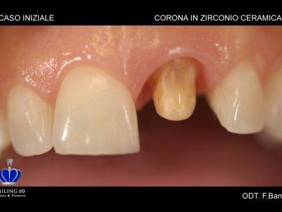 "Caso 30 ""Corona in zirconio ceramica Full"""