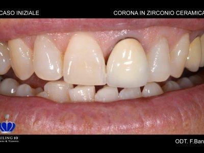 "Caso 26 ""Corona in zirconio ceramica Full"""