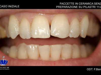 """Caso 28 """"Ricostruzione dente"""""""