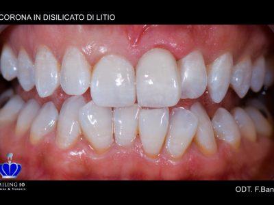 """Caso 31 """"Corona in zirconio ceramica a Veneer"""""""